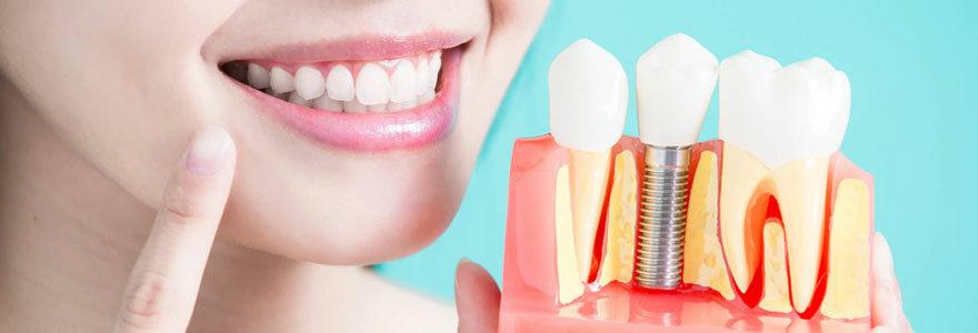 Bons plans d'implants dentaires